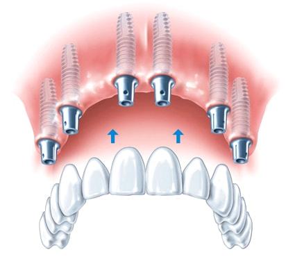 Имплантация зубов виды и цены на красоту и функциональность