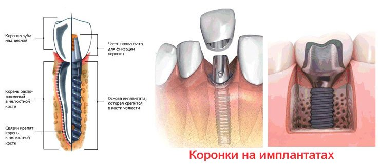 металлокерамика протезирование