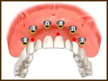 импланты при полном отсутствии зубов