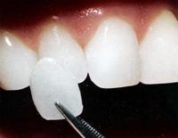 микропротезирование винирами и люминирами, установка виниров, протезирование зубов