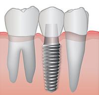 имплант, искусственный имплатант, восстановление зубов