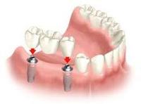 показания к имплантации зубов, имплант, имплантат