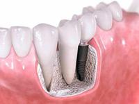 подготовительный этап имплантации, имплантация зубов