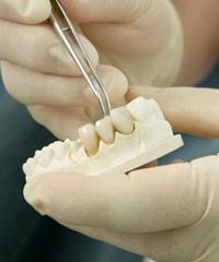 постоянное протезирование зубов, зубные коронки, зубной мост, имплантация зубов