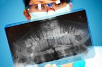Рентген зуба, ортопантомограмма, удаление зубов, обезболивание зубов
