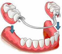 балочное крепление импалнтов, имплантация зубов, искусственые зубы, протезы