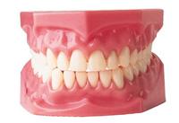 съемное протезирование на имплантах, имплантация зубов