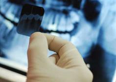 Рентген зуба, удаление зубов, обезболивание зубов