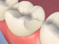 показания к установке виниров, сколы зубов, микропротезирование, виниры