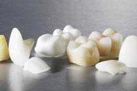 протезирование зубов вкладками, зубные вкладки, установка зубных вкладок