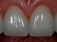 зубные вкладки, установка зубных вкладок, керамические зубные вкладки
