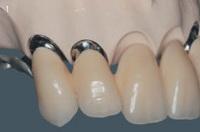 срок службы зубных вкладок, зубные вкладки, установка зубных вкладок