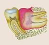 нужно ли удалять зуб мудрости? удаление зуба мудрости