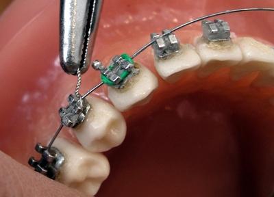 брекеты на зубы цена