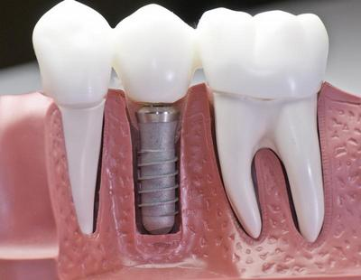 установка имплантанта зуба цена