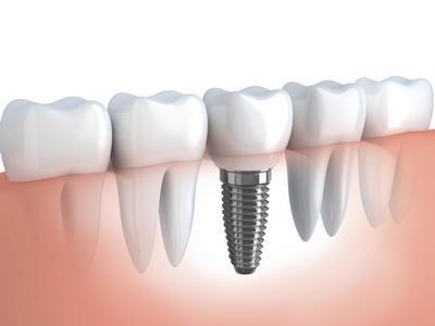импланты зубов виды и цены в Москве