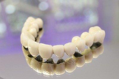 протезирование зубов металлокерамика