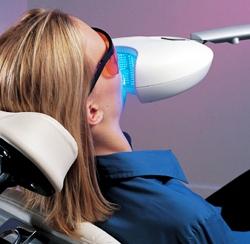Удаление налета, отбеливание зубов, чистка зубного камня